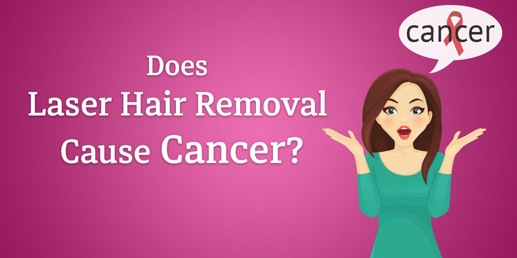 Does-Laser-Hair-Removal-Cause-Cancer