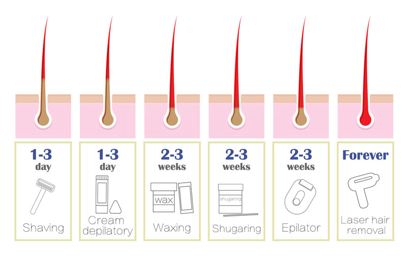 popular hair removal method comparison